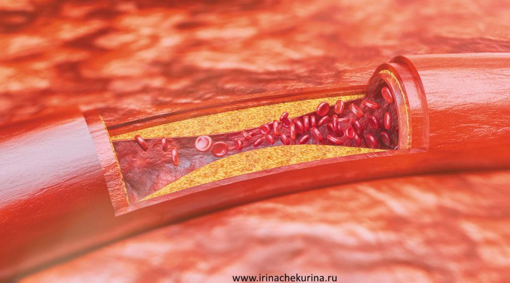 Poterja pamjati predotvrashhaem pojavlenija ateroskleroticheskih bljashek